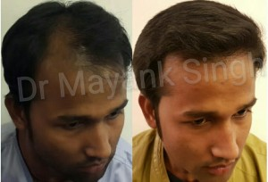 Best Hair Transplant results in Delhi 7