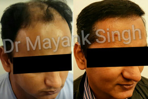 Hair Transplant Before & After in Delhi 6