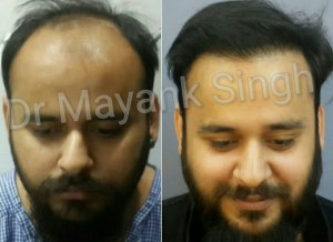 Hair Transplant Results in Delhi NCR 18