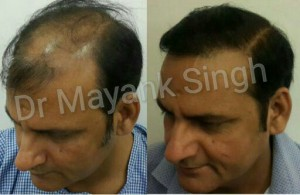 Hair Transplant Results in Delhi NCR 26