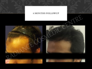 Hair Transplant Before and after results NCR
