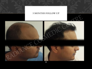 Best Hair Transplant Before and after results Delhi