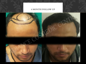 Hair Transplant Before and after results in Delhi