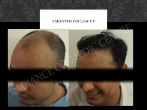 Hair Transplant Testimonials Before and after