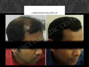 Hair Transplant Surgery Before and after