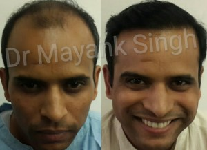 hair surgery before and after results in Delhi