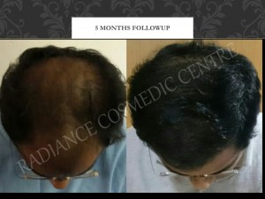 Before and After of Hair Surgery