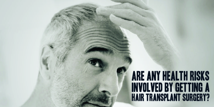 Are any Health Risks involved by getting a Hair Transplant Surgery