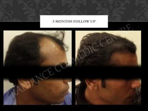 Cheapest cost for hair Surgery