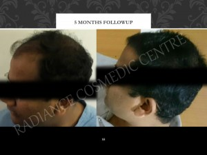 Cheap cost hair transplantation Surgery