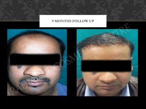 Affordable Cost for Hair Transplant Surgery in Delhi NCR
