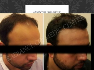 Hair Surgery at Cheapest cost