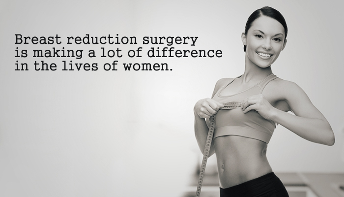 Breast reduction surgery is making a lot of difference in the lives of women