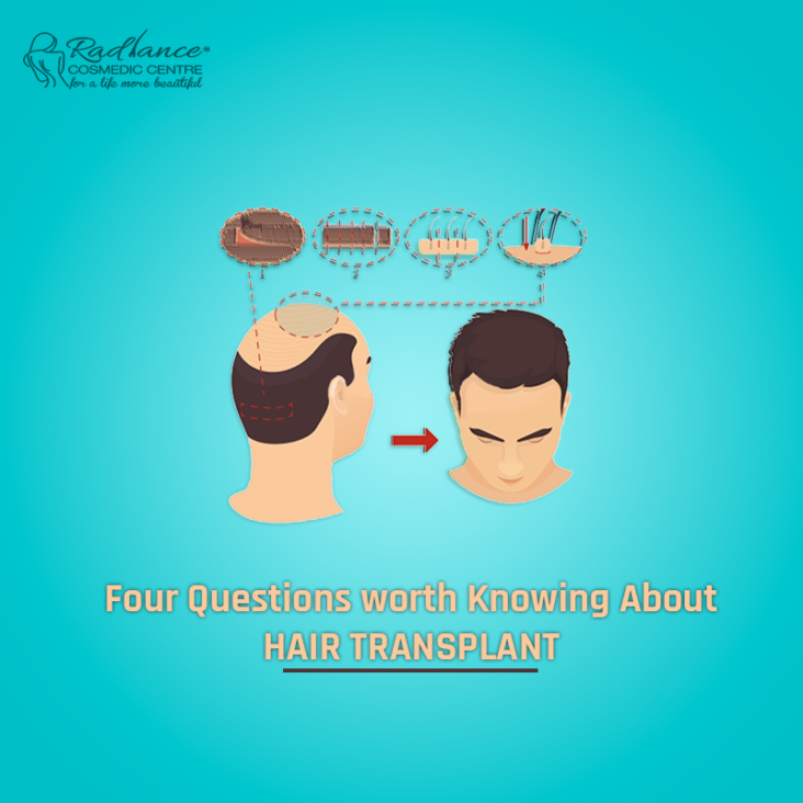 Four Questions worth Knowing About Hair Transplant