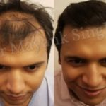 hair transplant before and after delhi patients (1)
