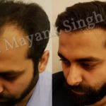 hair transplant before and after delhi patients (5)