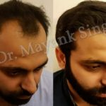 hair transplant before and after delhi patients (7)