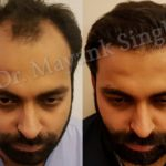 hair transplant before and after delhi patients (8)