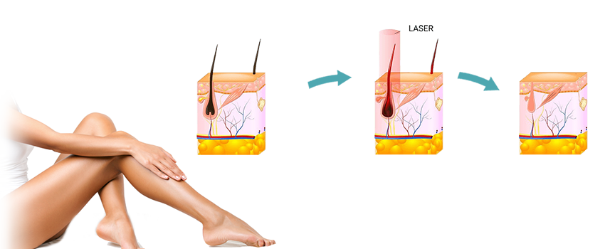 LASER HAIR REMOVAL WITH RADIANCE COSMETIC CENTRE