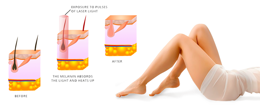 Full Body Laser Hair Removal In Delhi India At Low Cost With Best