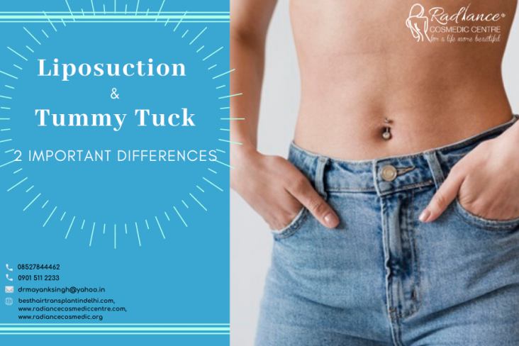 liposuction surgeon Delhi